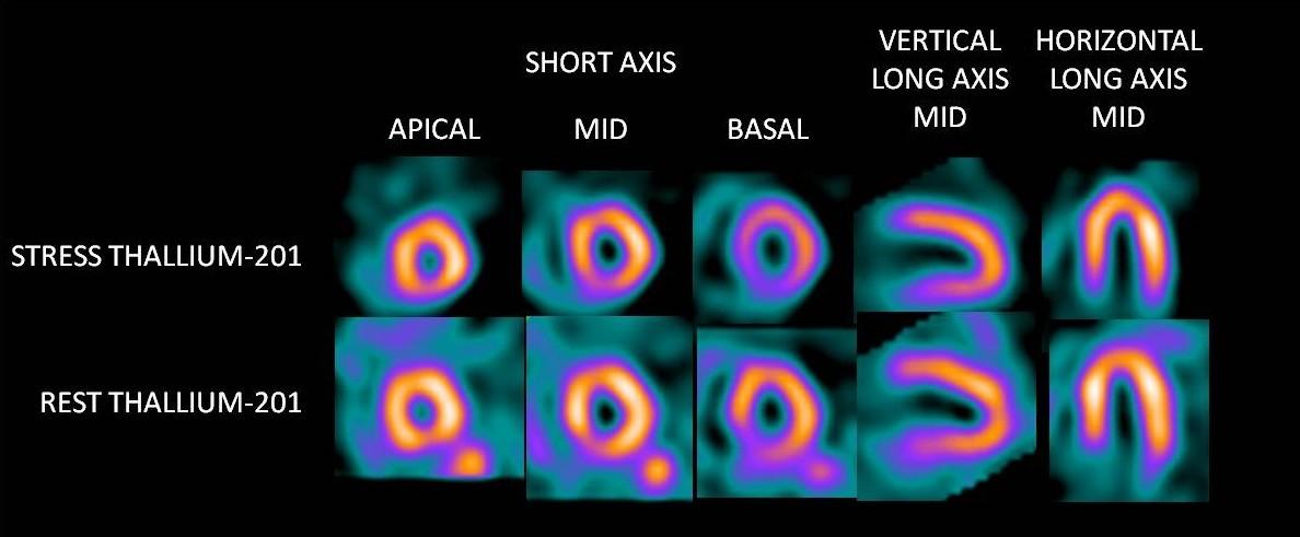 Thallium Clinical Image